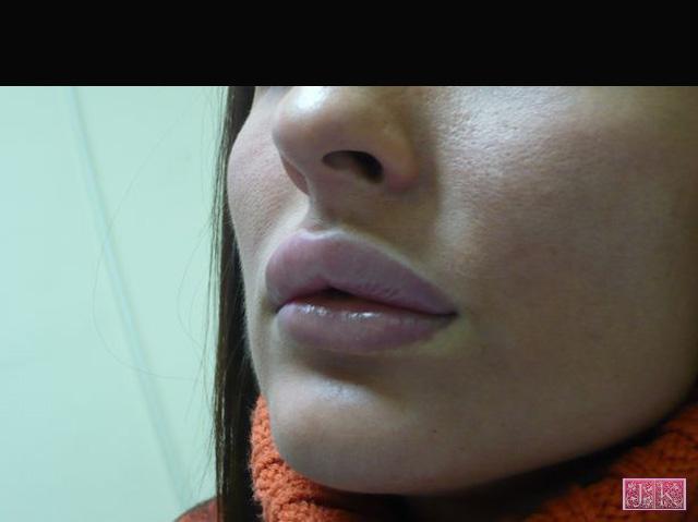 Контур на устните